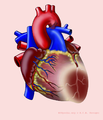 Heart with AL infarct.png