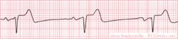 Sinusbradycardia