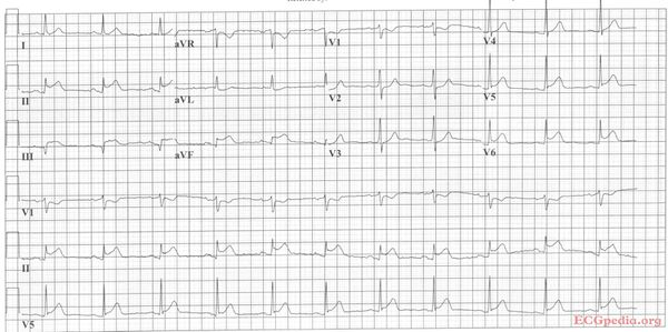 antwoord oefeninfarct 1