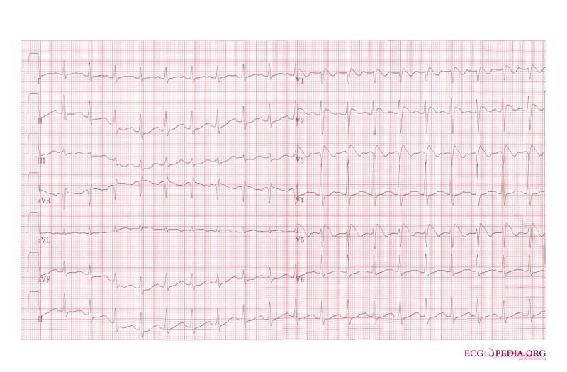 File:Brugada syndrome type1 example6.jpg