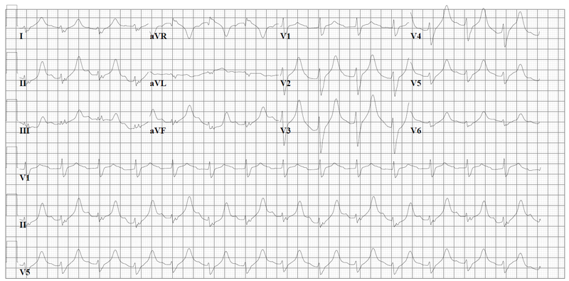 File:ECG nortr intox.png