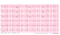 Brugada syndrome type1 example3.png