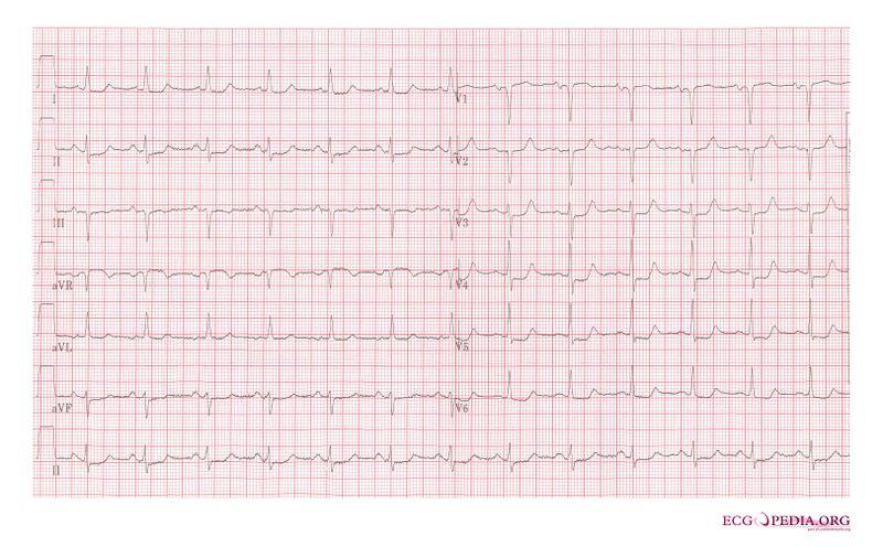 File:Subendocardial ischemia2.jpg
