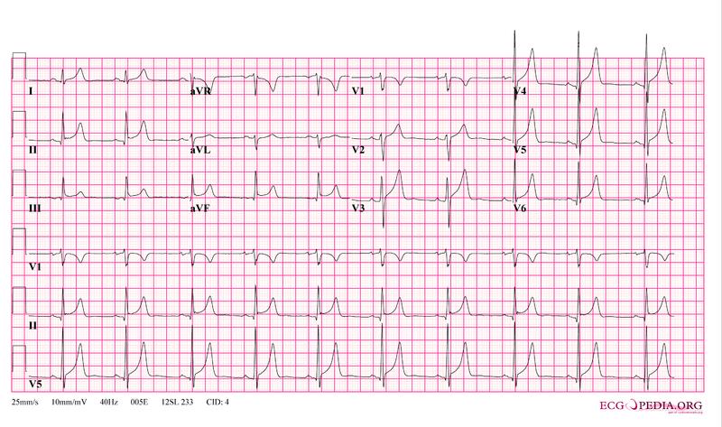 File:12leadpericarditis.png