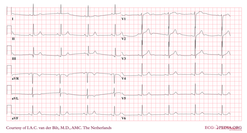 File:Sinusbradycardia.png