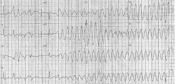 Torsade de Pointes (TdP) on a 12 lead ECG