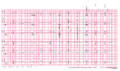 Brugada syndrome type2 example1.png