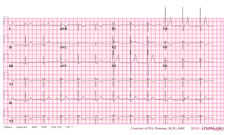 File:Brugada syndrome type2 example1.png