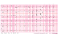 Brugada syndrome type1 example1.png