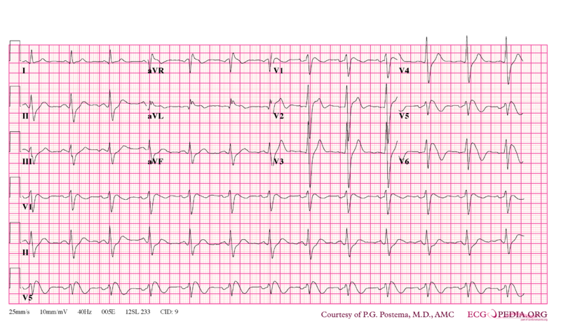 File:Brugada syndrome type1 example1.png