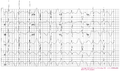 T wave alternans.png
